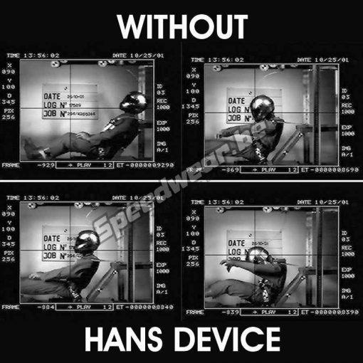 Hans Schroth 20° EVO Large nekbescherming autosport